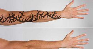 Usuwanie tatuaży Toruń